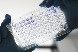 Coronavirus, bufera sul commissario della Fda americana: aveva dato il via libera a un iter accelerato per il vaccino